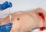 Wound packing torso_